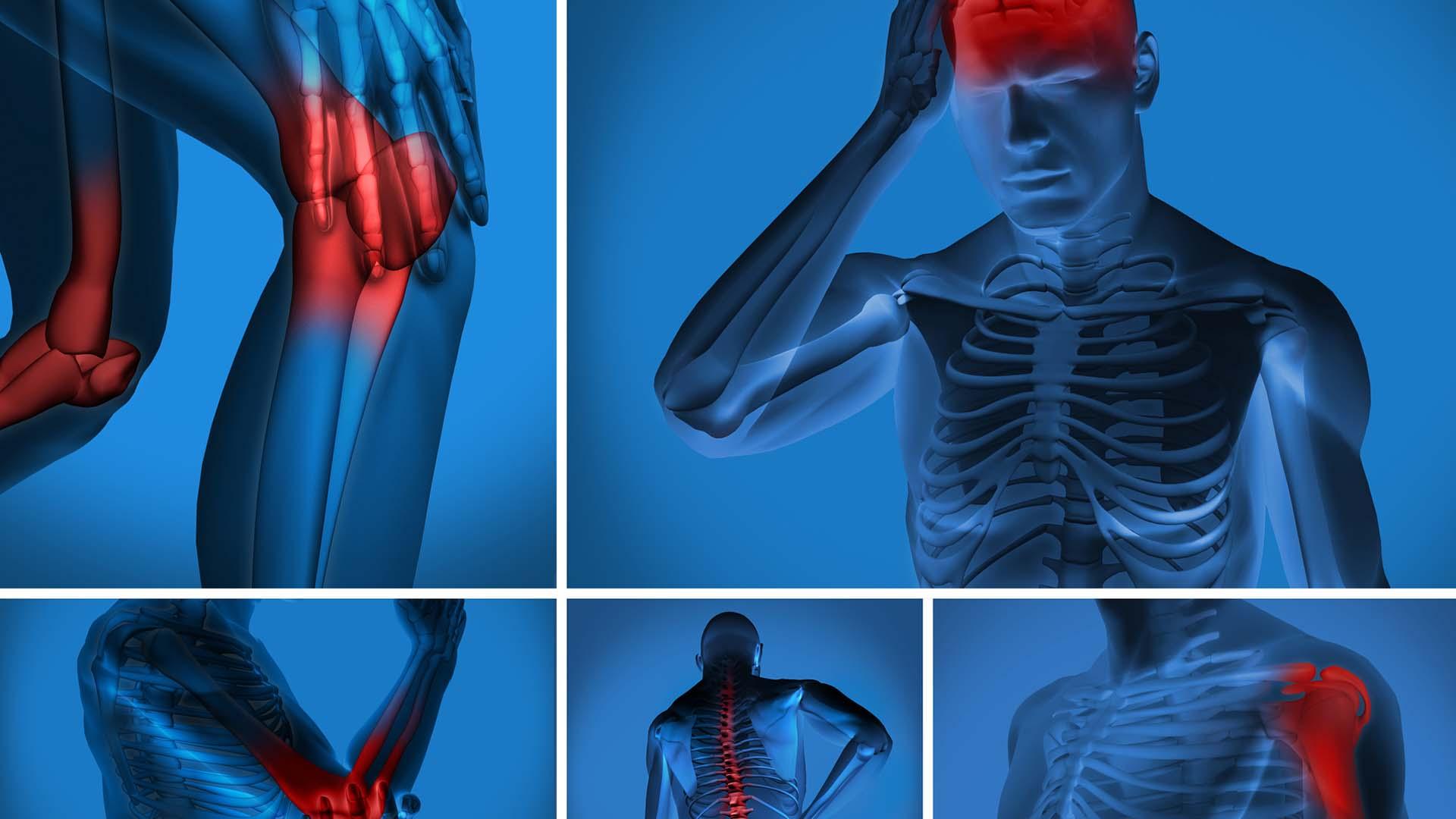 Douleurs anti-inflammatoires